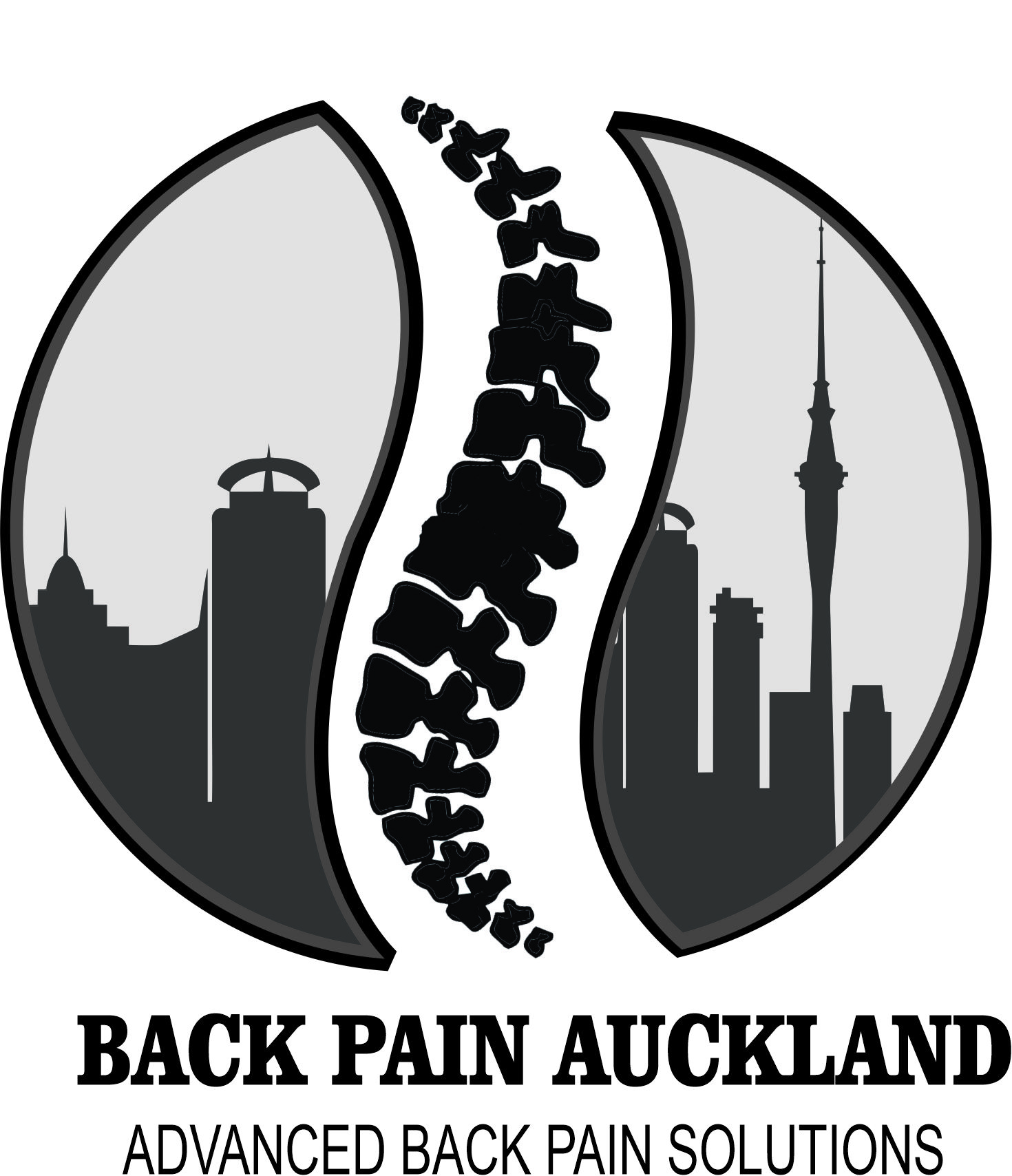 Back Pain Auckland