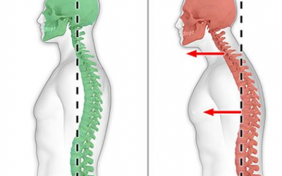 Bad Posture and Lower Back Pain
